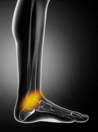 douleur pied cheville