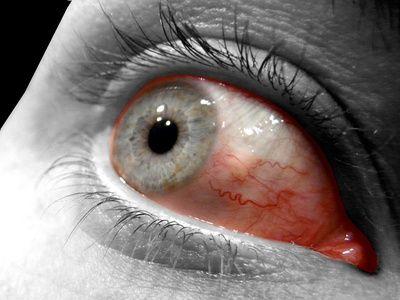 fatigue oculaire traitement