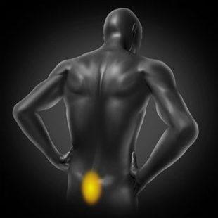 importante arthrose lombaire