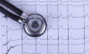 Électrocardiogramme ou ECG