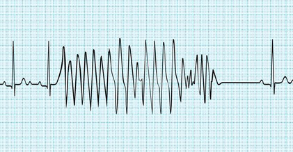 Item 284 : Troubles de la conduction intracardiaque