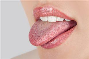Morsures de la langue
