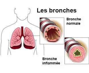 traitement naturel bronchite