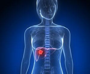 Cancer du sein et cancer secondaire du foie