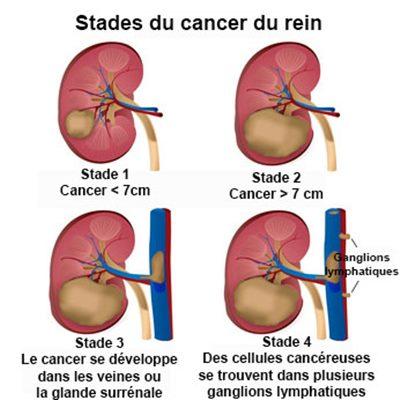 cancer de la rate chez la femme