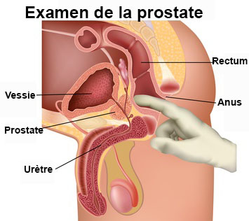 Penis Fissure Natural Cure