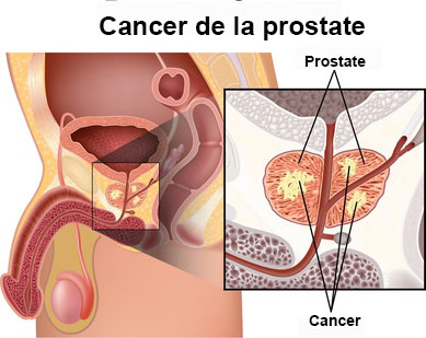 Traitement du cancer de la prostate