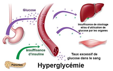 trop d insuline symptomes