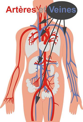 La maladie variqueux des veines