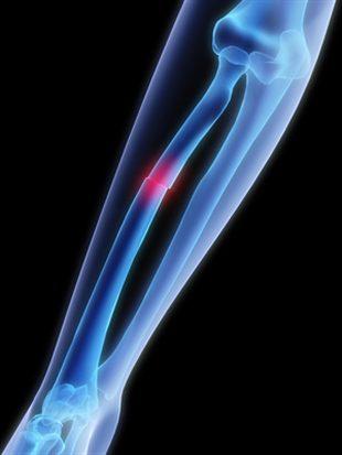 Fracture de l'avant-bras