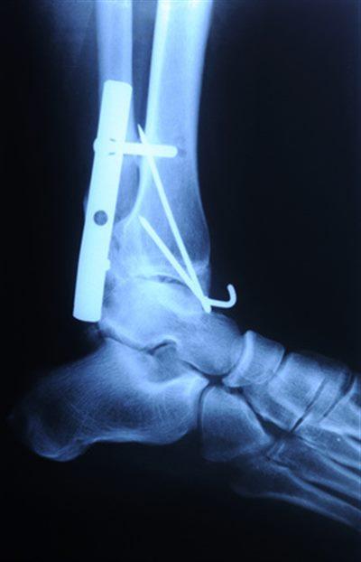Douleur Cheville Gauche Signification fracture de la cheville : symptômes, traitement, définition