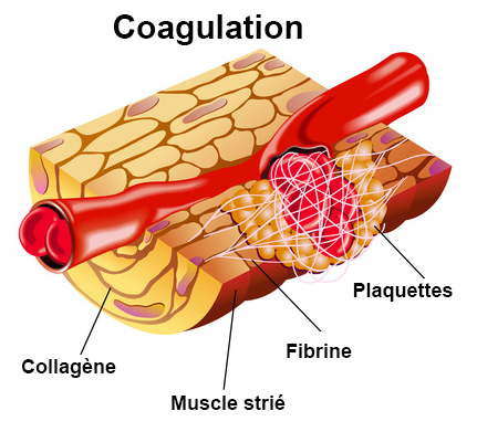 Troubles de la coagulation
