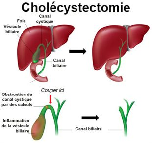 Cholécystectomie