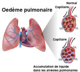 Oedème aigu du poumon: OAP