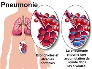 Broncho-Pneumonie