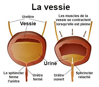 Rétention urinaire : symptômes, traitement, définition
