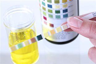 rapport iono urinaire
