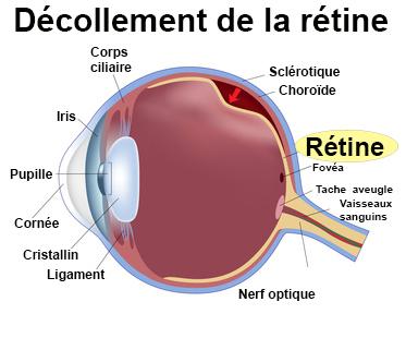 recherche medicale maladies retine