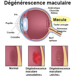 Dégénerescence maculaire