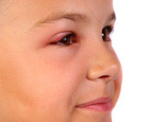 La photo des jeunes filles avec les rides sous les yeux