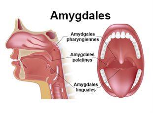 Phlegmon de l'amygdale