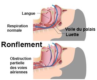 Ronflements anti ronflement sympt mes traitement d finition - Trouble du sommeil que faire ...