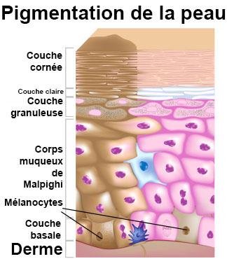 Les taches sombres de pigment le corps