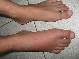 pieds gonflés insuffisance cardiaque