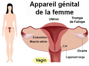 Vaginite - Inflammation des parois vaginales