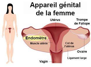 Endométrite