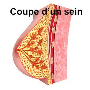 Gonflement des seins (femme)