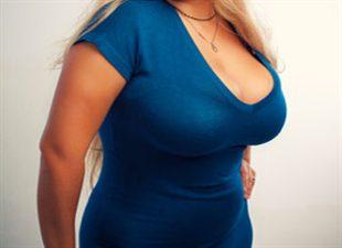 Chirurgie des gros seins