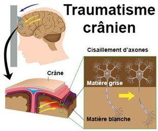 Que faire en cas de traumatisme cr nien chute sur le - Symptomes fausse couche sans saignement ...