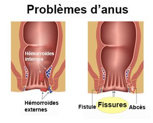 Fissure anale : dfinition, causes, symptmes et volution
