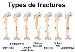 Fracture sympt mes traitement d finition - Differents types de miroirs ...