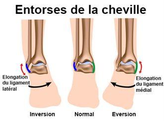 Douleur Cheville Gauche Signification douleurs de la cheville : symptômes, traitement, définition