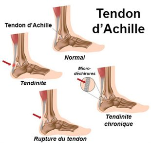Rupture de tendon