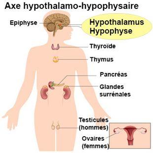 Hypopituitarisme