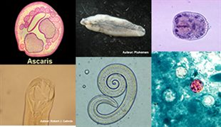 Parasites intestinaux (rando, trek, montagne)