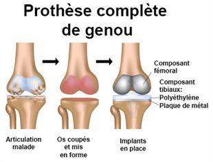 Prothèses articulaires