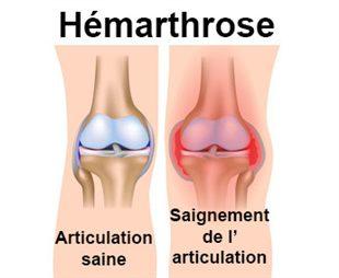 Hémarthrose