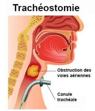 Trachéostomie
