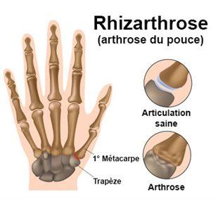 Rhizarthrose
