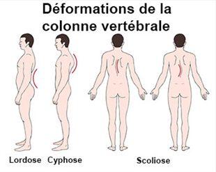 Les métastases du service de poitrine de lépine dorsale