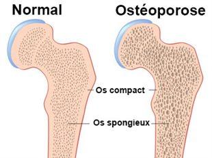 Ostéoporose : des réponses à vos questions