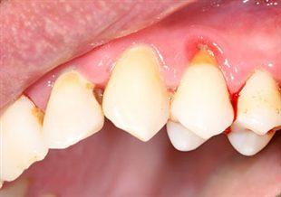 comment arreter une hemorragie dentaire