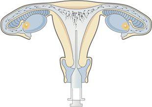 Procréation médicalement assistée (PMA), aspects légaux