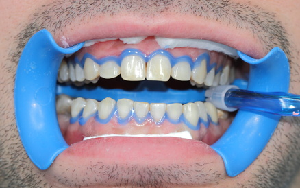 Recommendations AFSSAPS sur le blanchiment des dents