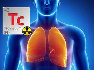 Scintigraphie pulmonaire