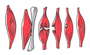 Déchirures musculaires (rando, trek, montagne)